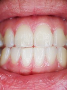 ADULTS WITH GUM DISEASE MAY BE AT GREATER ISCHEMIC STROKE RISK
